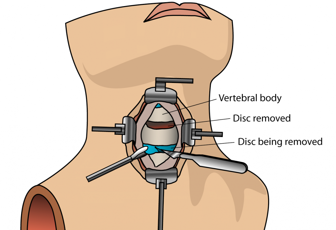 Anterior cervical discectomy (ACDF) surgery: All you need to