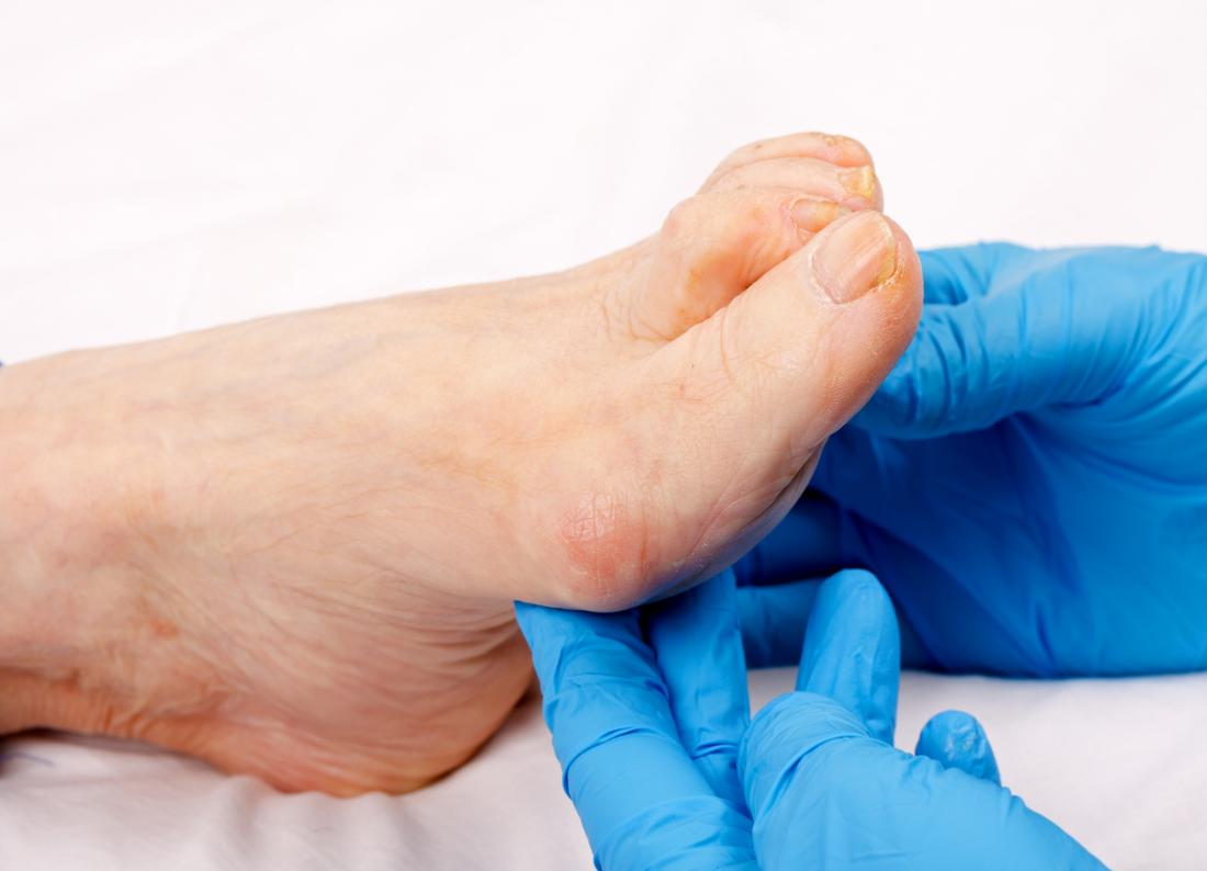Senior persons foot showing signs of thickened toenails from aging.