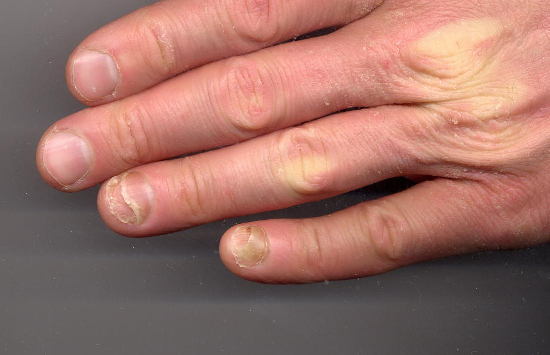Onycholysis: Symptoms, causes, and pictures