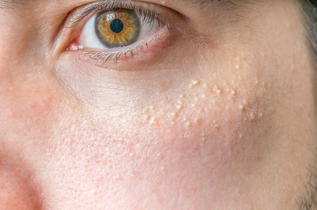 White what patches on skin little causes