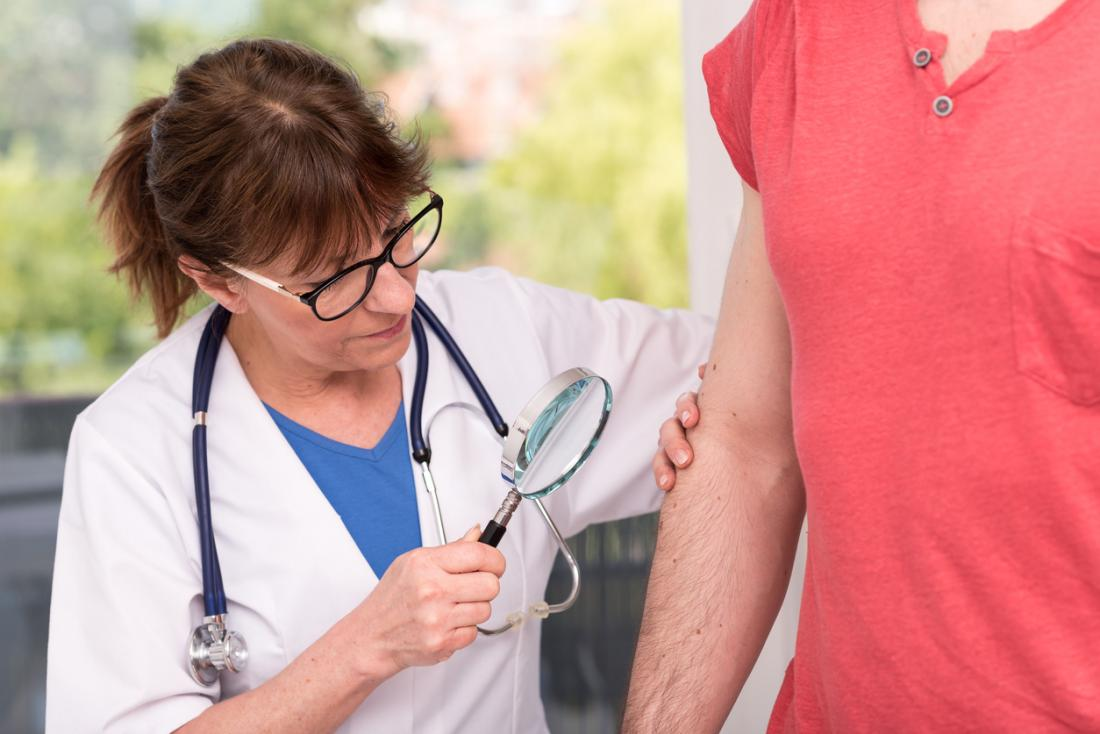 Lichen sclerosus: Symptoms, causes, and treatment
