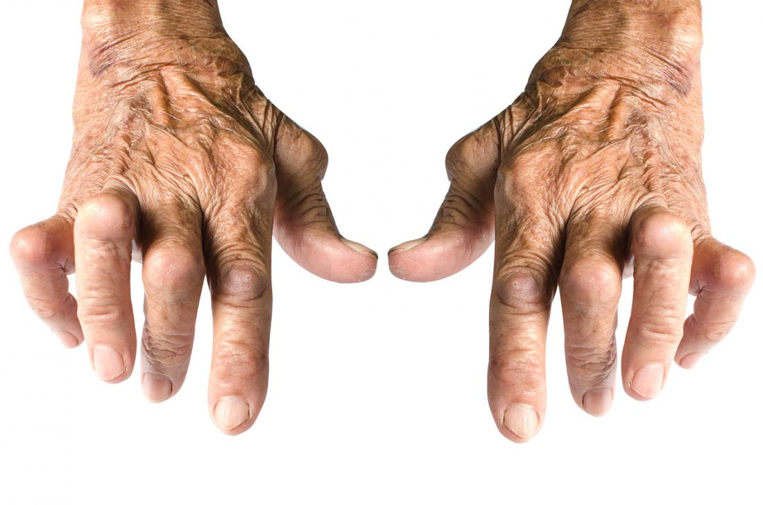 Arthritis in hands Symptoms, treatment, and home remedies