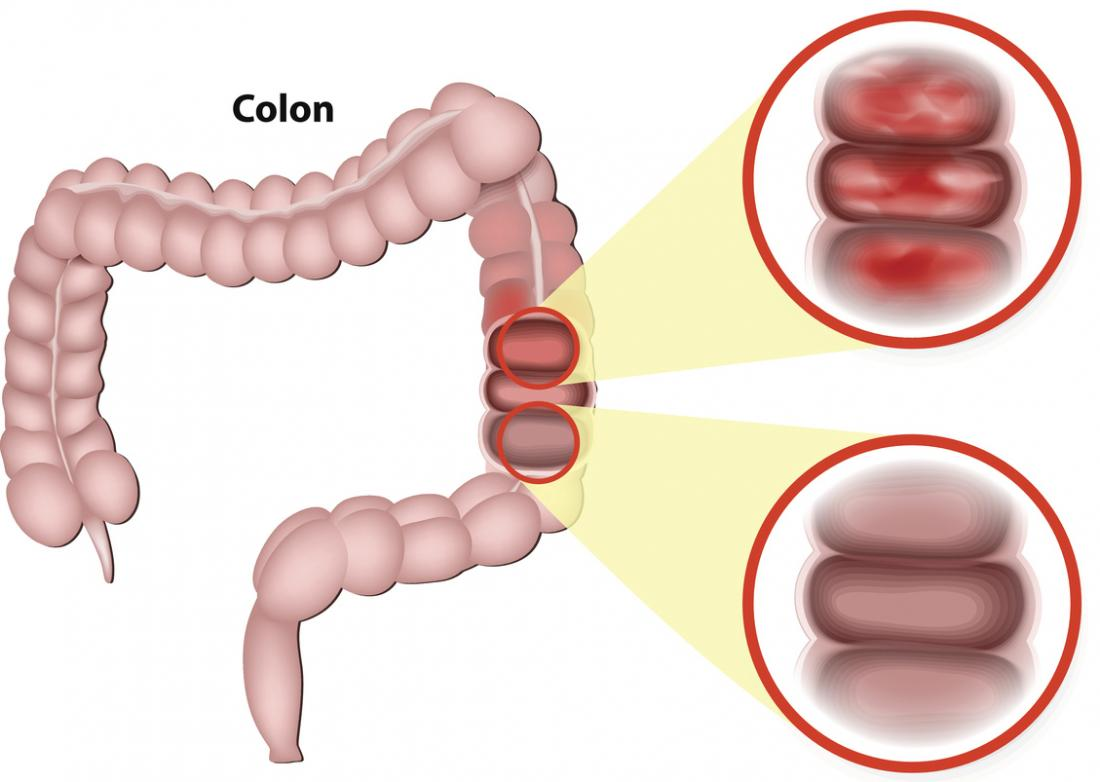 Left-sided colitis: Symptoms, diagnosis, and treatment