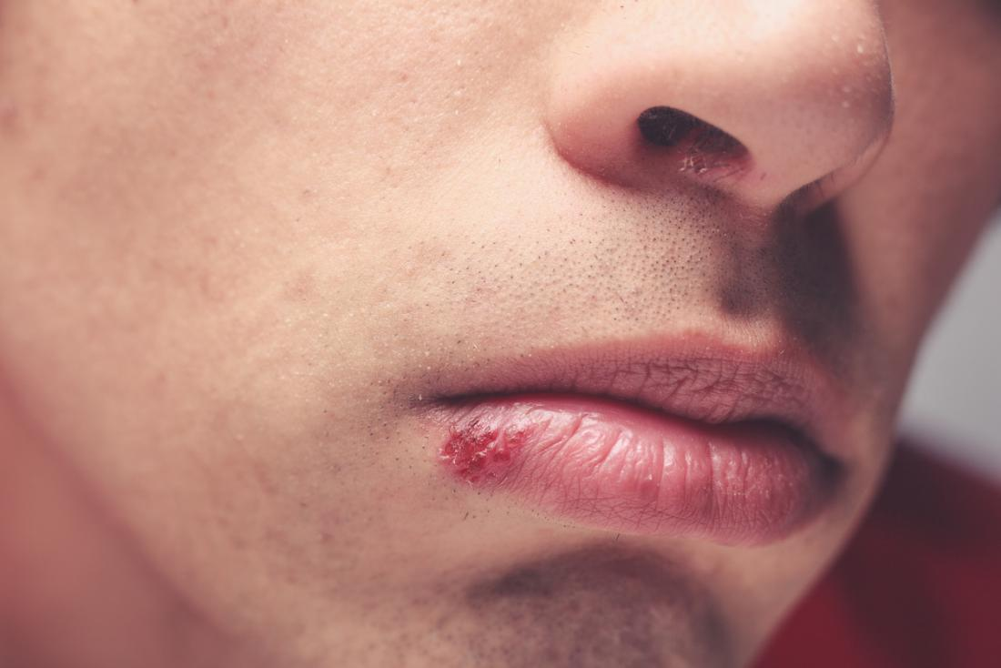 10 essential oils for cold sores