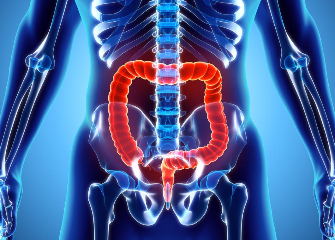 Image of the colon - pancolitis
