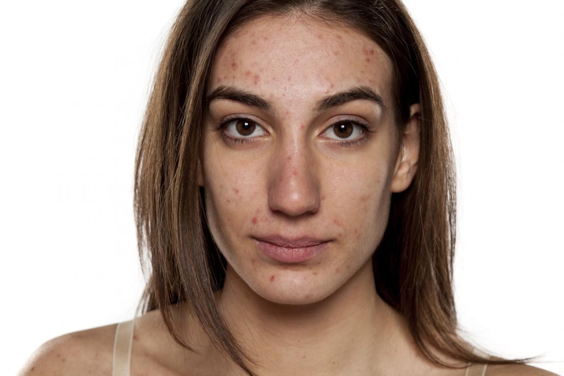 8 ways to improve skin health