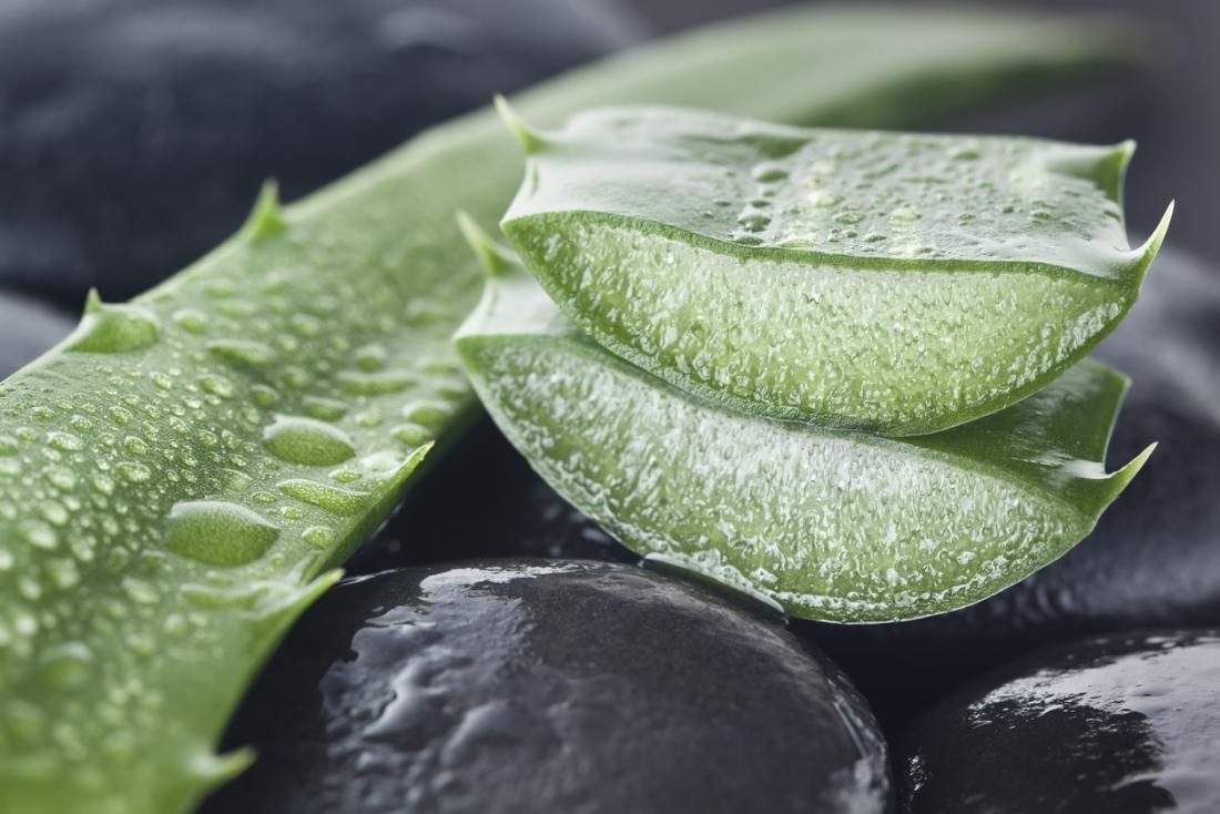 Aloe vera for psoriasis: Benefits and how to use it