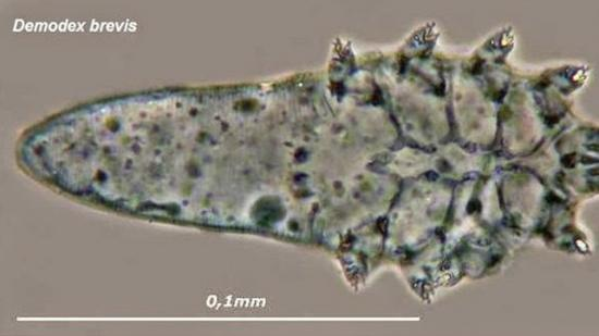 Demodex brevis: Causes, symptoms, and treatments