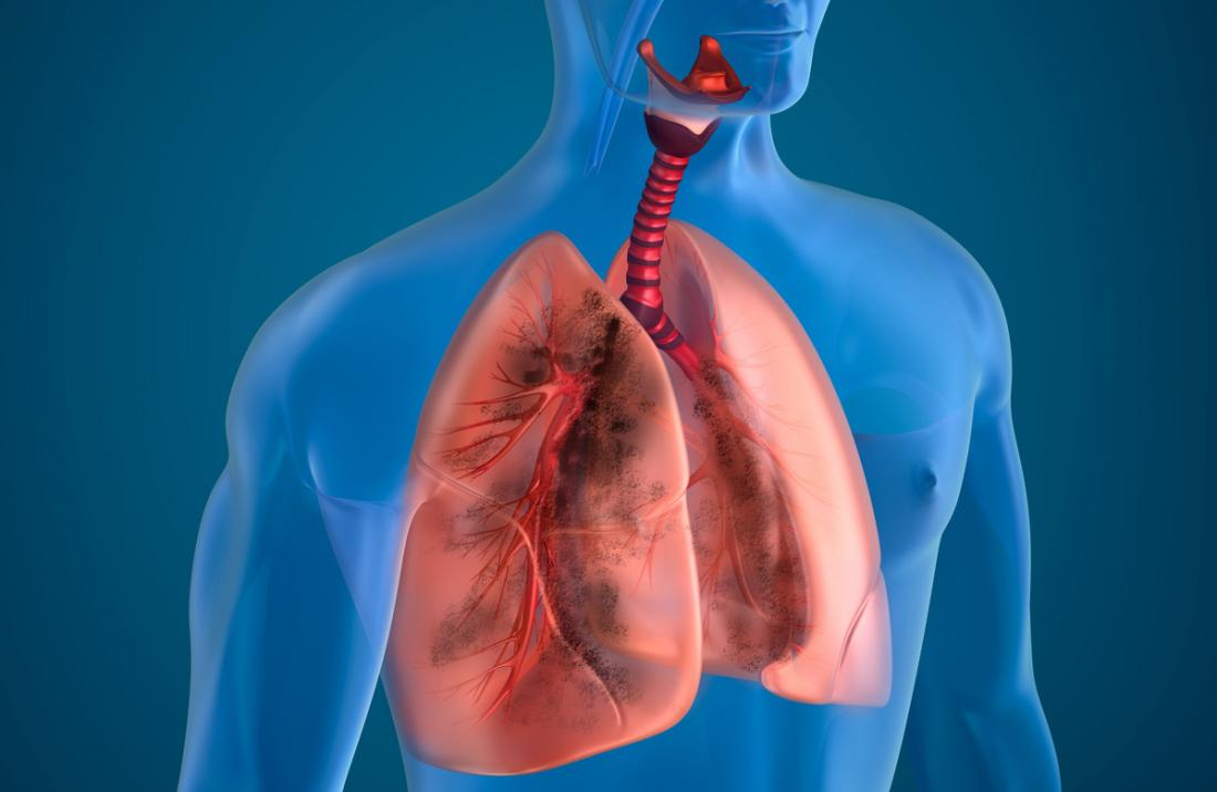 3D model of lungs and airways.