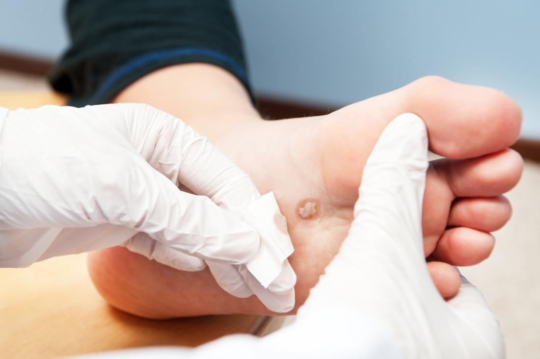 Freezing warts: Does it work, home remedies, and what to expect