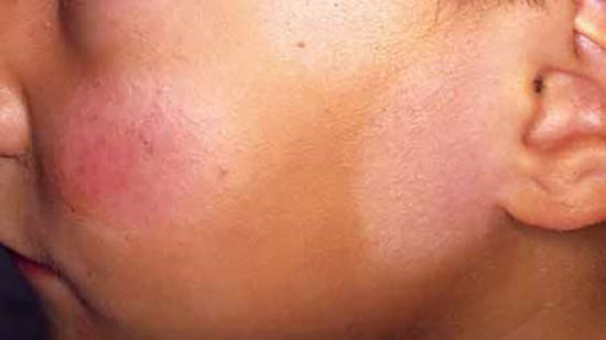 hypopigmentation topical steroids