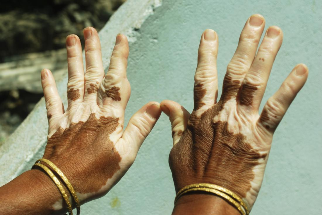 Hypopigmentation: Causes, types, and treatment