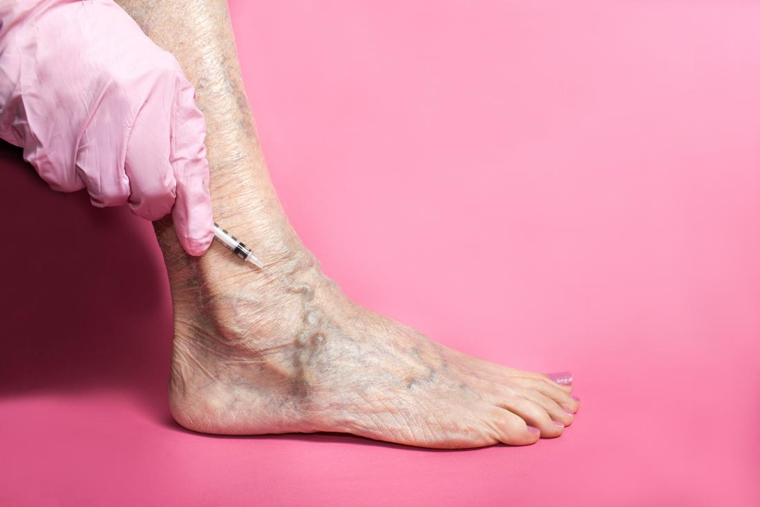 Sclerotherapy: Uses, side effects, and recovery