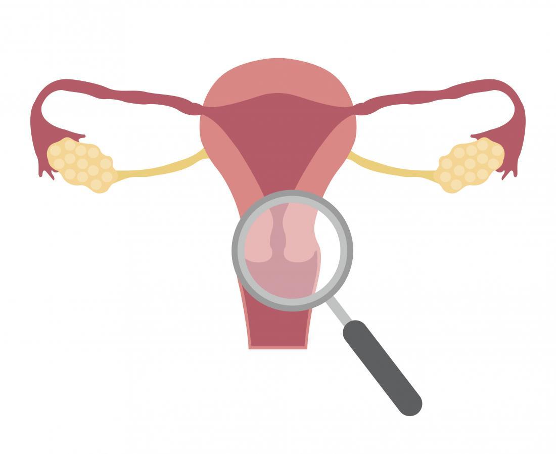 Cervical ectropion: Symptoms, treatment, and causes