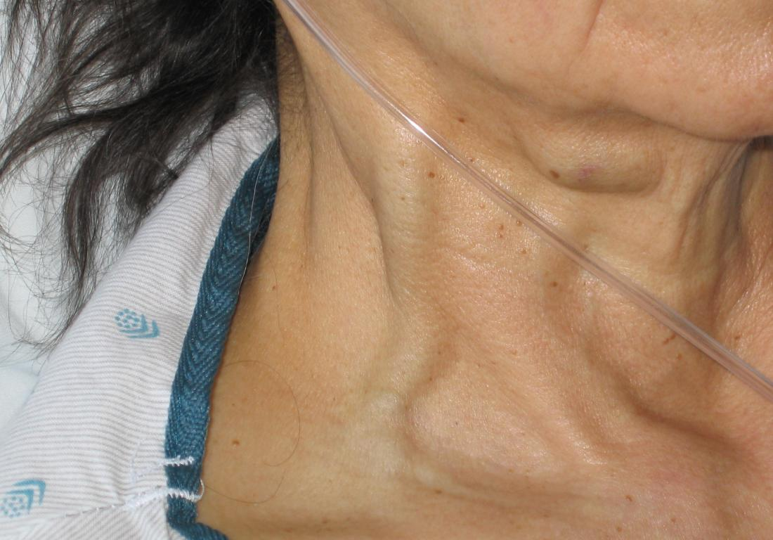 Jugular vein distention (JVD): Causes, risk factors, and diagnosis