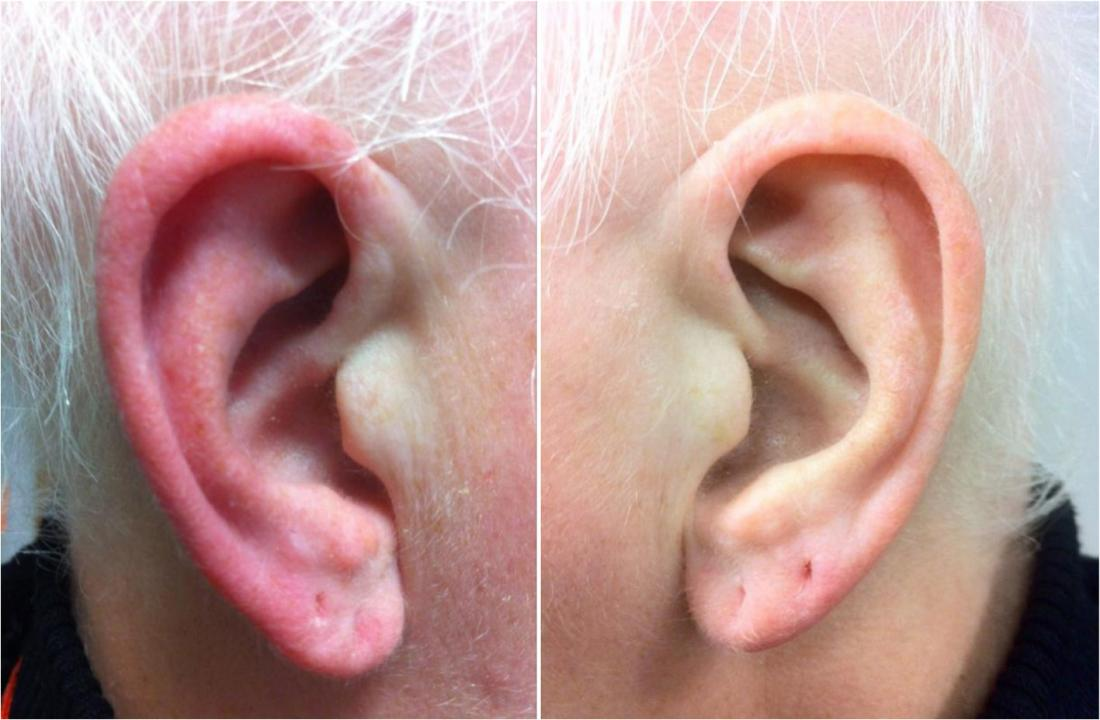 Red ears: Symptoms, causes, and treatment