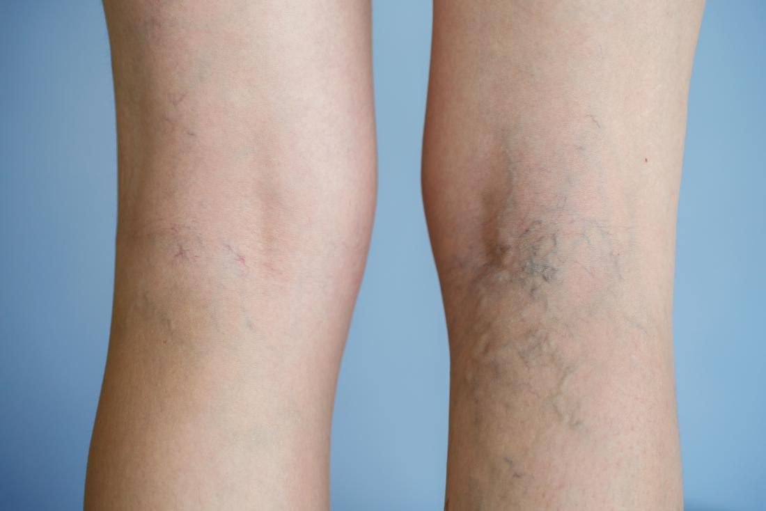 Varicose vein pain: Symptoms and treatment
