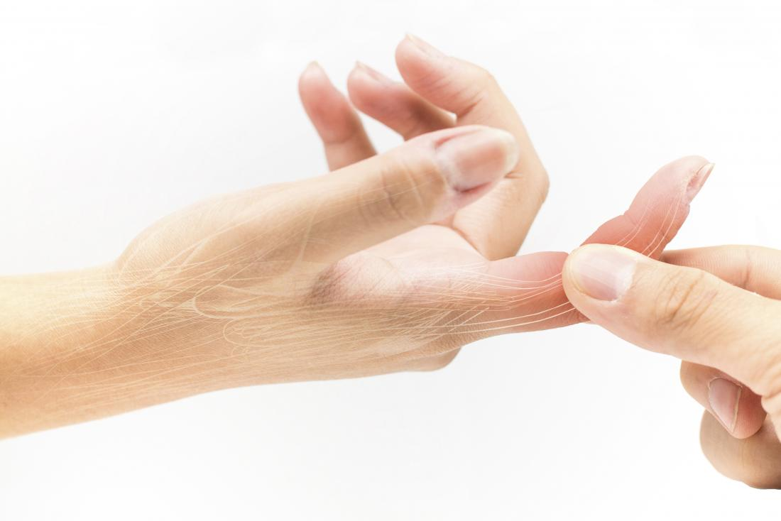 Sprained finger: Symptoms, treatment, and recovery