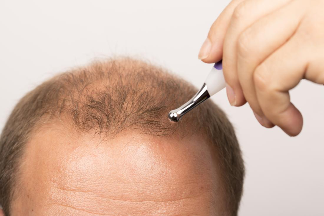 You a receding hairline 🌱 reverse can Make a