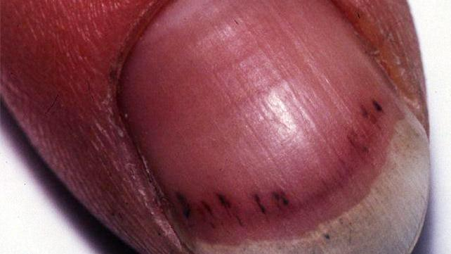 Black line on the nail: Causes, treatments, and pictures