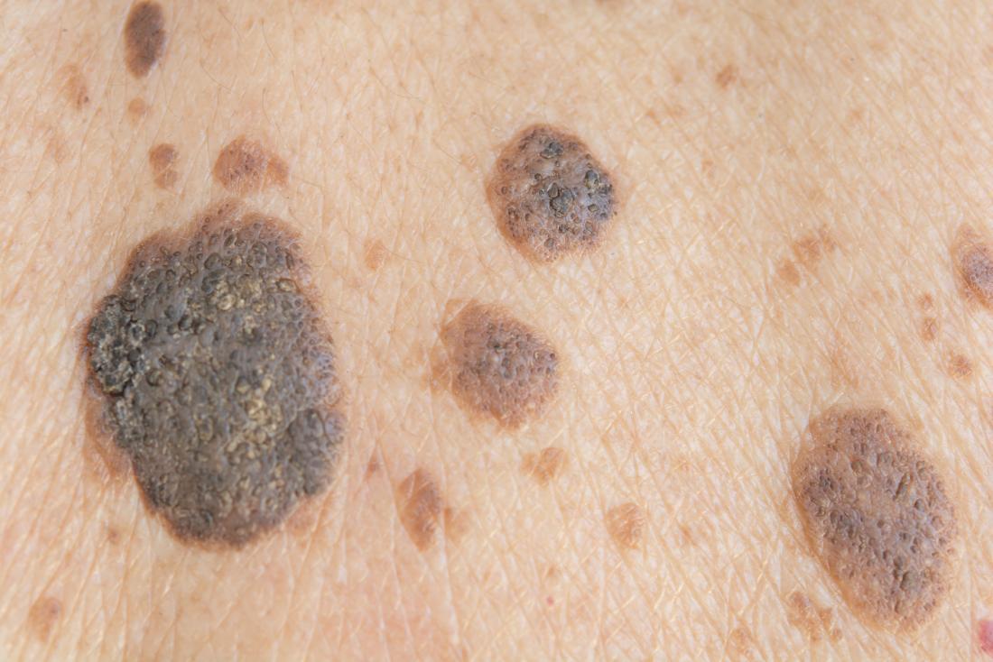 Seborrheic keratosis vs  melanoma: What's the difference?