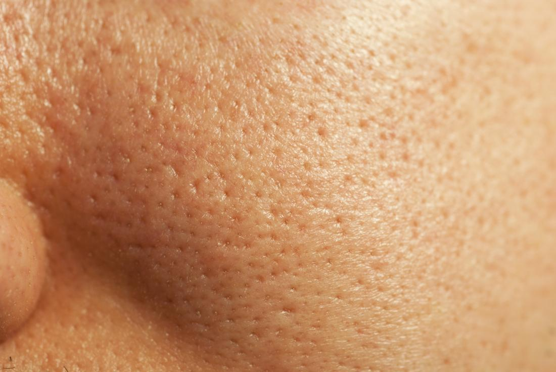 How to get rid of large pores: The top 8 ways