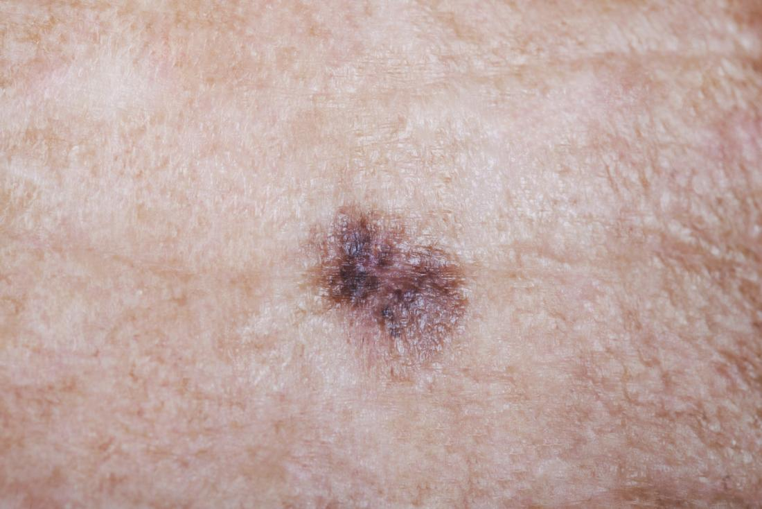 Itchy mole: Causes, treatment, and symptoms