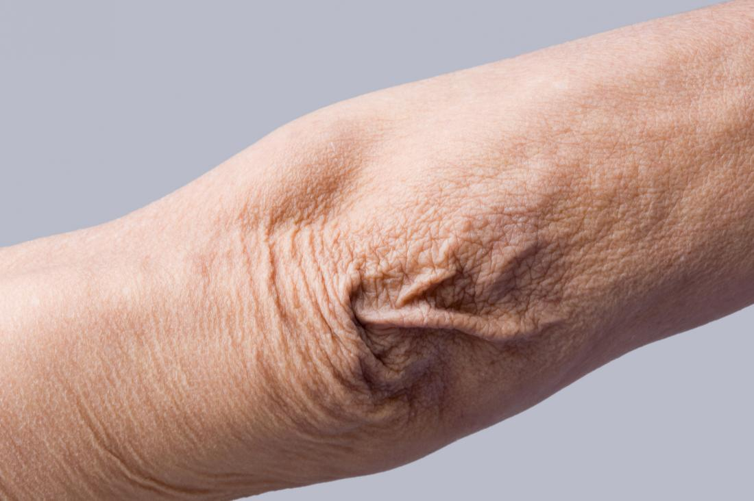 Crepey skin: Treatment, causes, and how to fix it