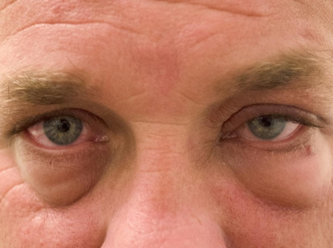 Periorbital edema: Pictures, causes, and treatments