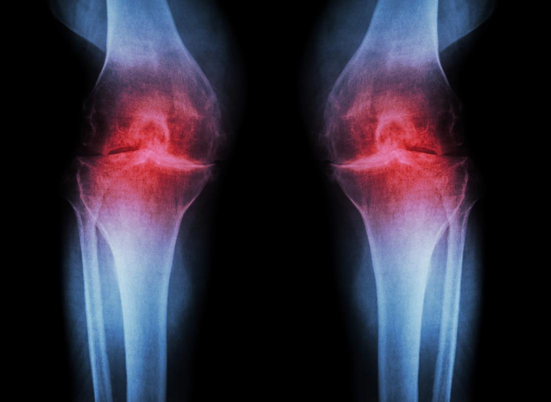 Osteoarthritis Could Researchers Have Found The Key To Prevention