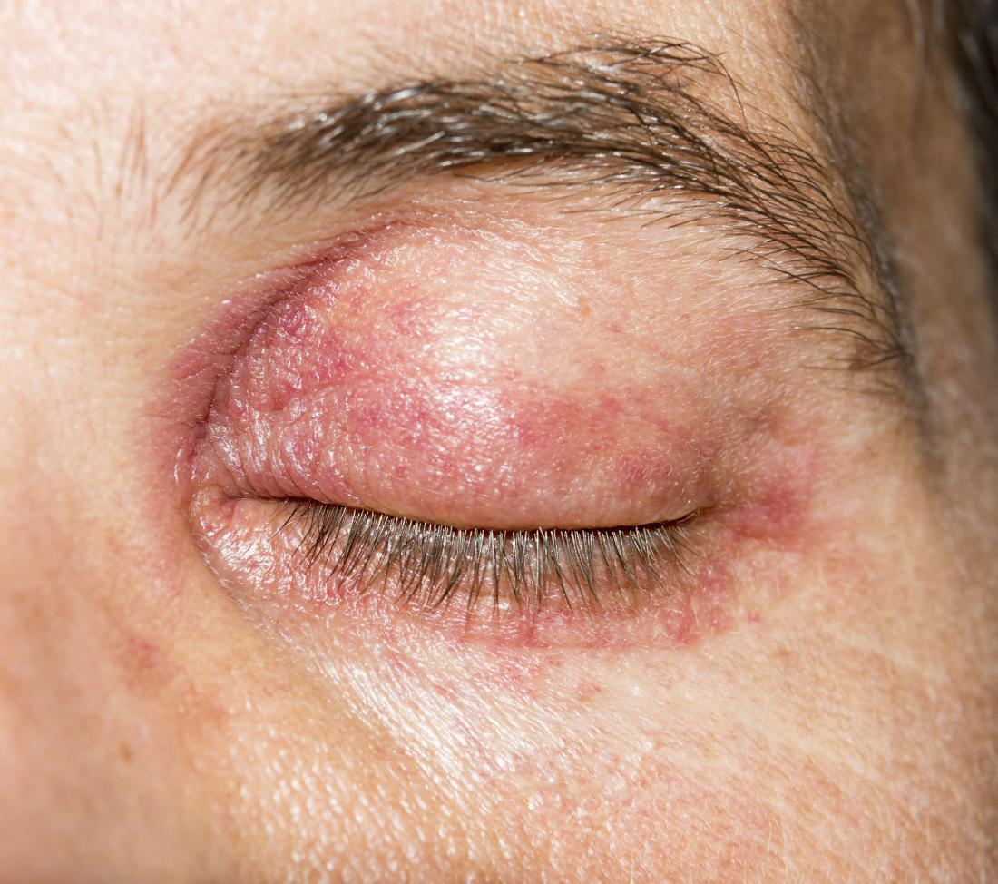 Eyelid dermatitis: Treatment, symptoms, and causes
