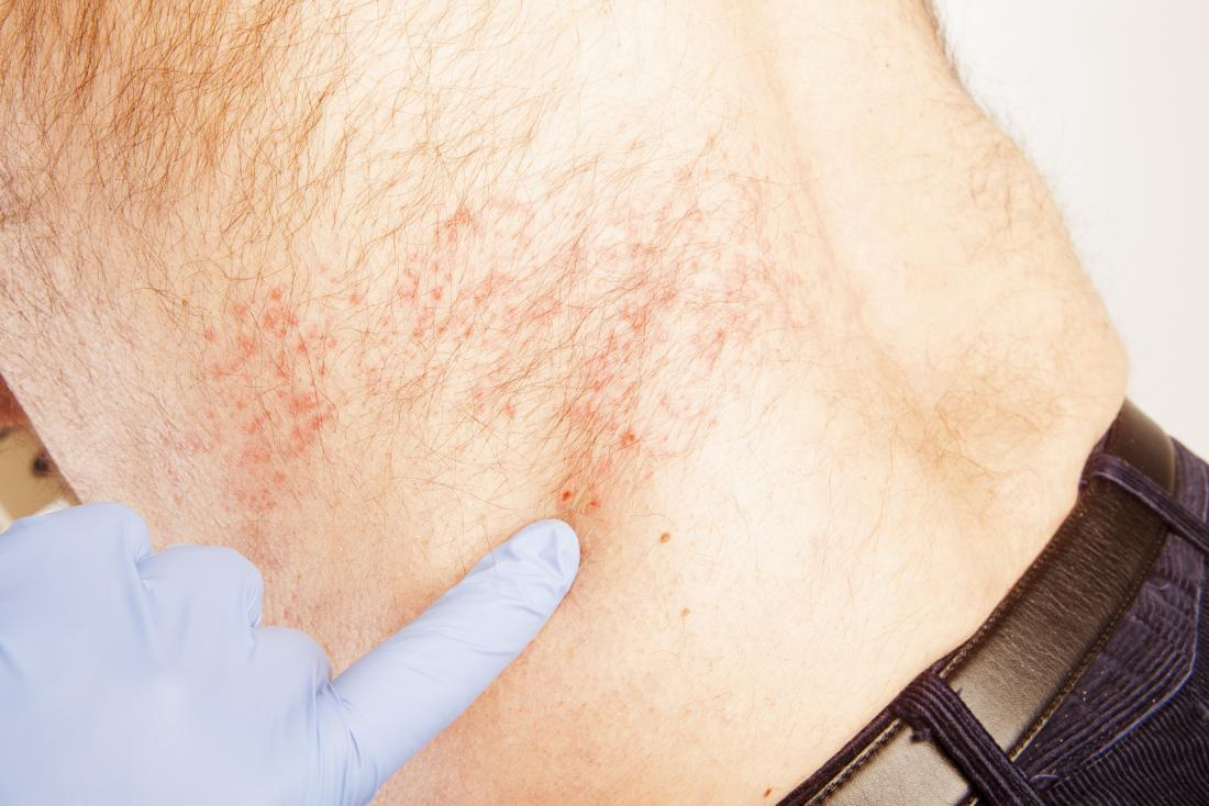 How long does shingles last? Timeline and treatment