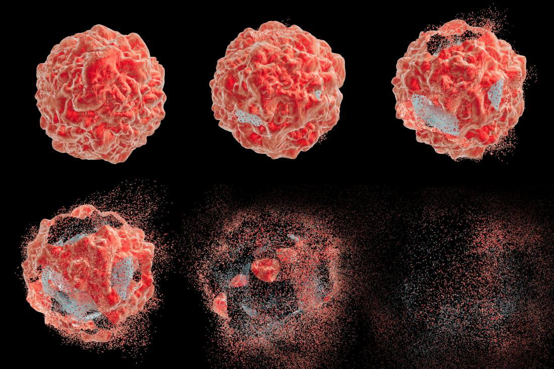 Cancer cells' survival strategy defeated with new approach