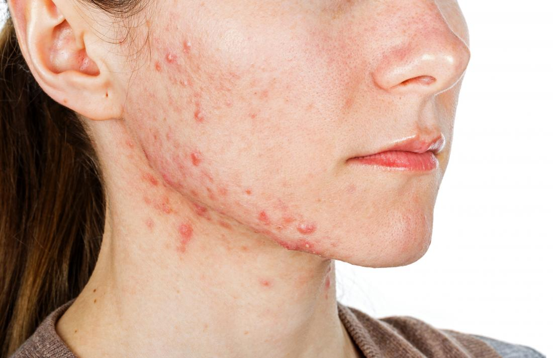 Jawline Acne Causes Treatment And Prevention