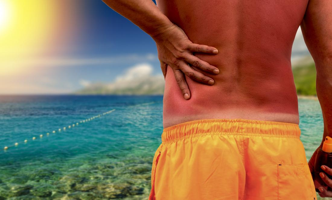 Hell's itch: How to treat a severe sunburn itch