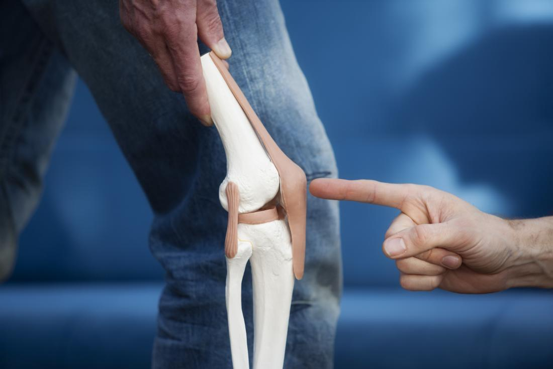 Patellar tendonitis: Symptoms, treatment, and causes