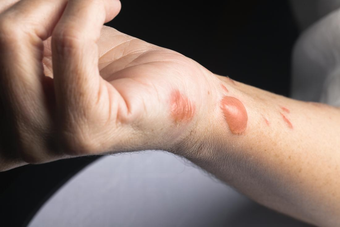 Burn scars: Treatment, removal, and prevention
