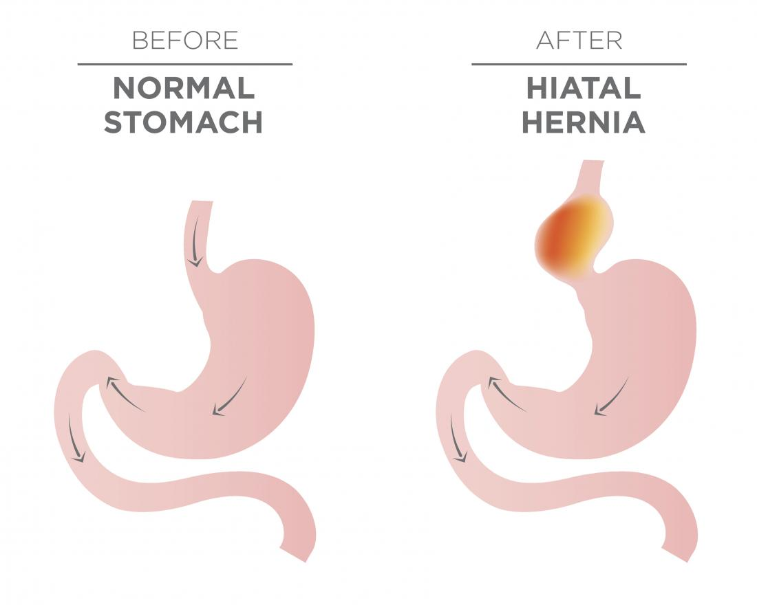 Hiatal hernia surgery: Procedure, recovery, and outlook