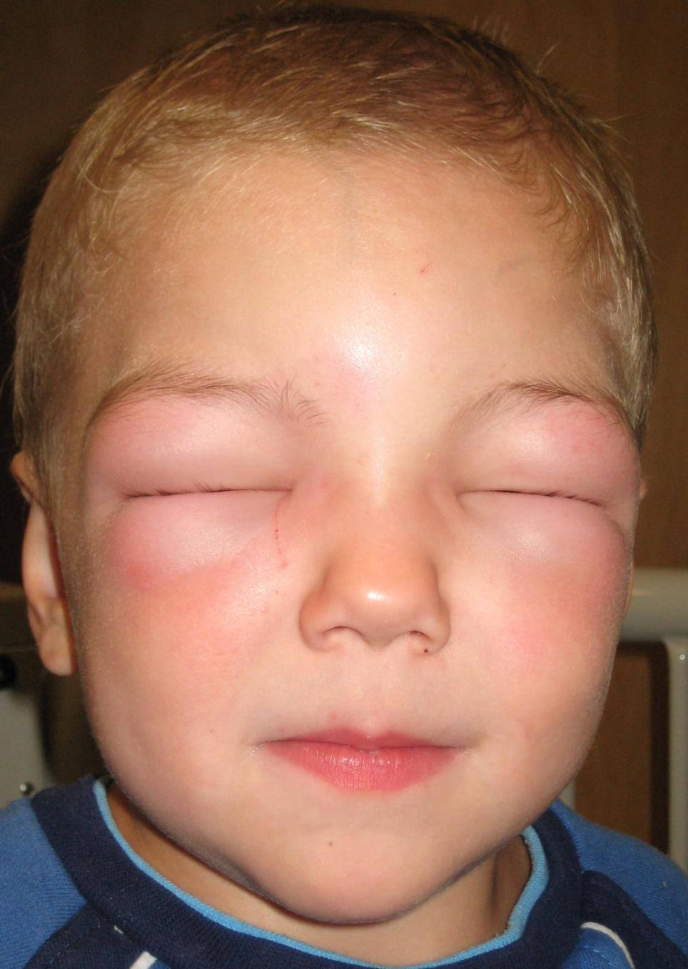 Allergic reaction on face: Treatment, causes, and symptoms