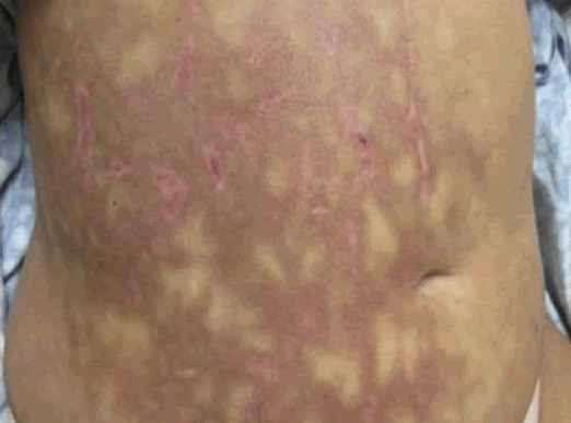 Mottled skin (livedo reticularis): Causes, treatment, and what it means