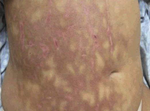 Acute pancreatitis causing mottled skin or Livedo reticularis on abdomen.