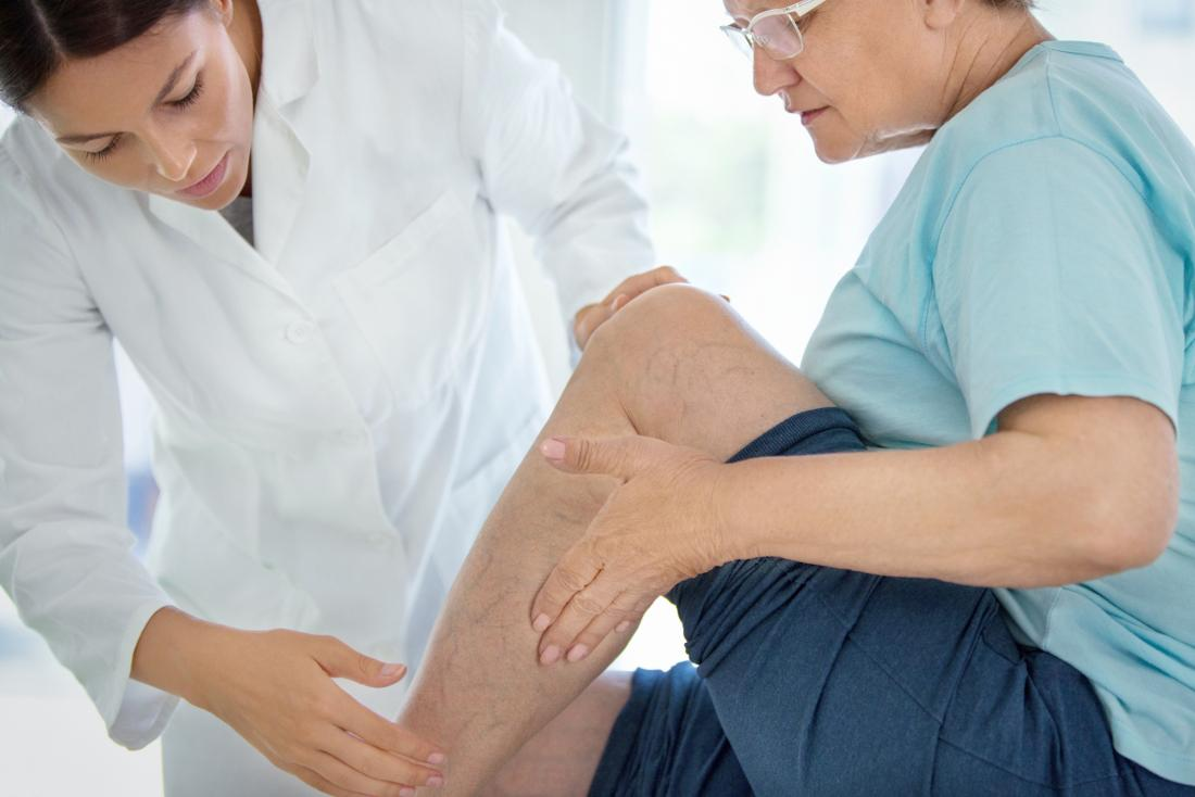 Calf pain in senior woman sitting on examination table with doctor.