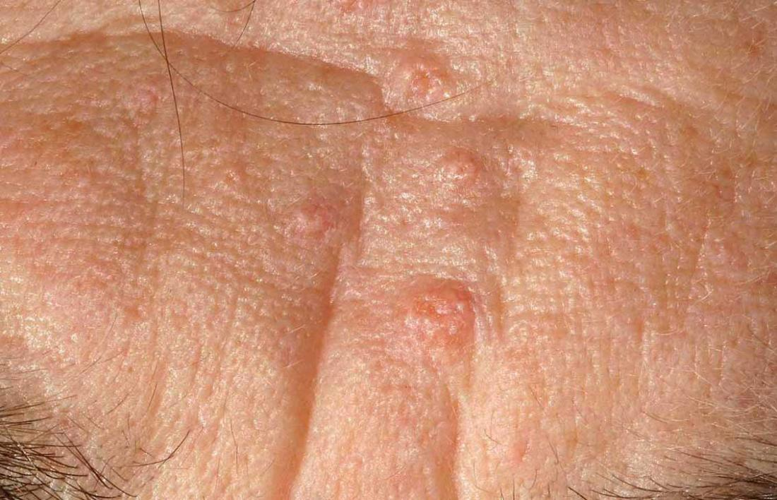 Sebaceous hyperplasia: Causes, symptoms, and removal