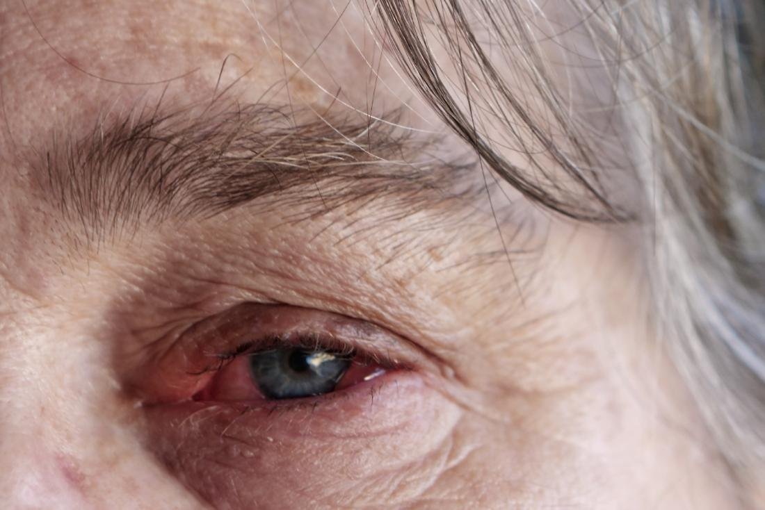 How long does pink eye last? 7 signs you are still contagious