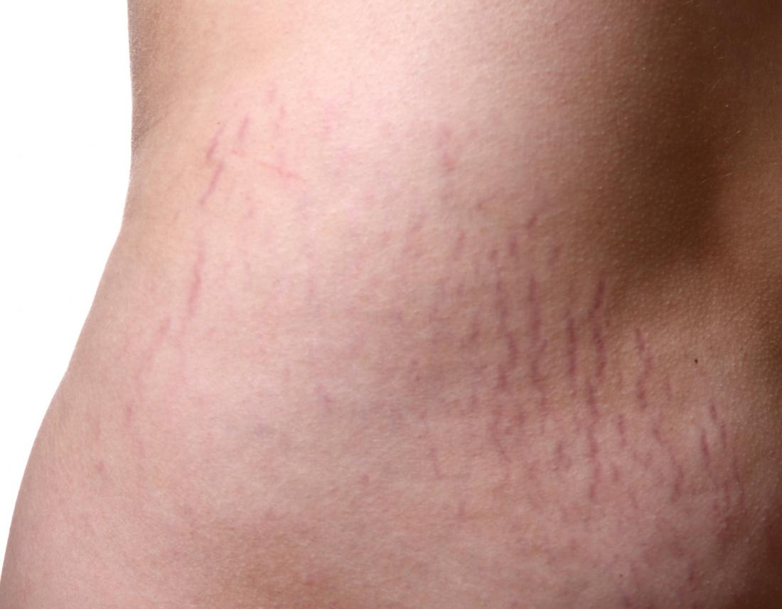 What essential oils are good for preventing stretch marks?