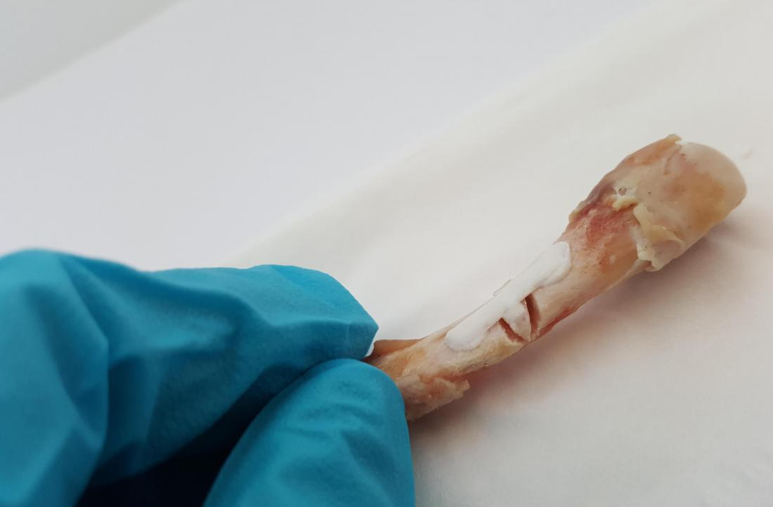 Experimental glue could soon fix broken bones