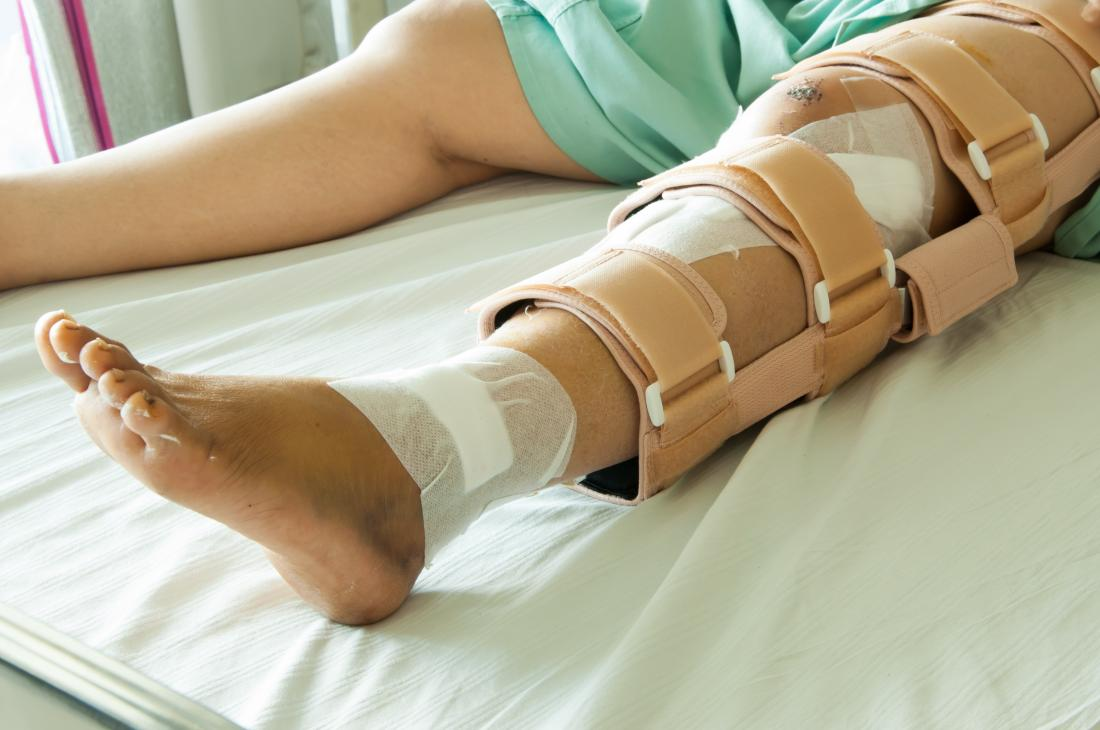Tibia fracture: Types, symptoms, and treatment