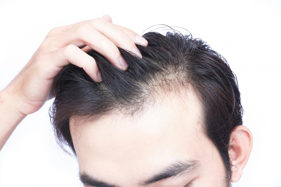 Vitamin D deficiency hair loss: Symptoms and treatment