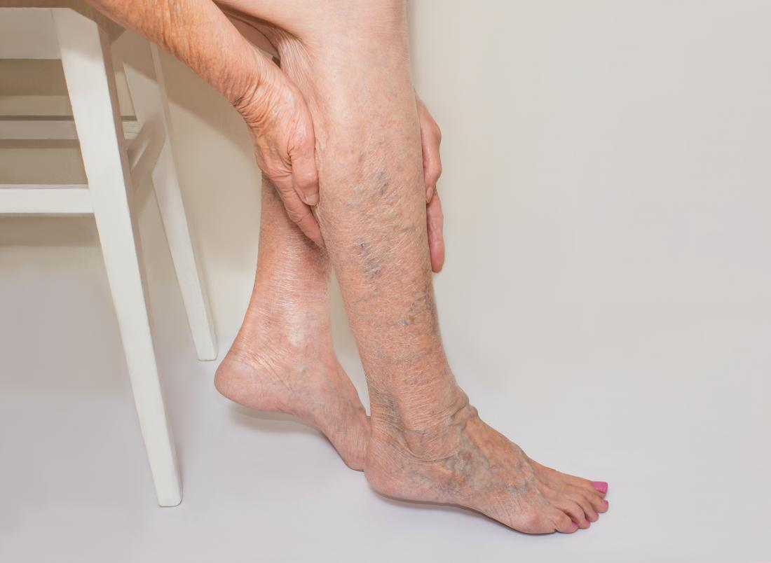 Home Remedies You Could Use to Treat Varicose Veins