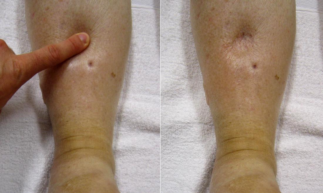 Pitting edema: Symptoms, causes, and when to see a doctor